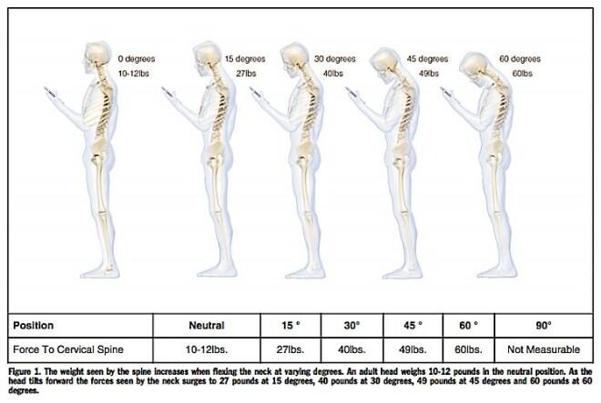 Smartphone-Nacken-Studie von K. Hansraj