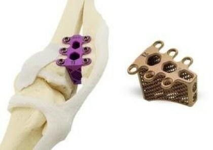 Hunde-Implantat aus dem 3D-Drucker