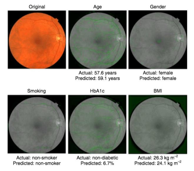Google AI: Augenscans erlauben Diagnose