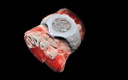 Medipix: 3D-Farb-Röntgen